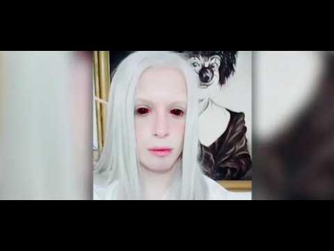 Un Argentin dépense 50 000$ pour ressembler à un elfe (vidéo)