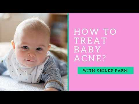 What is Baby Acne and how do you treat it? With Dr Jennifer Crawley and Childs Farm! #ad
