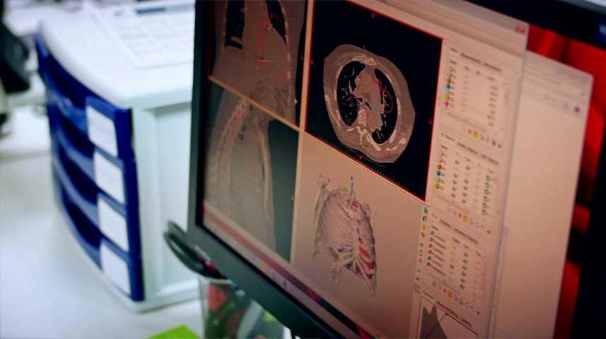 Illustration pour la vidéo Un cœur artificiel pour une seconde vie