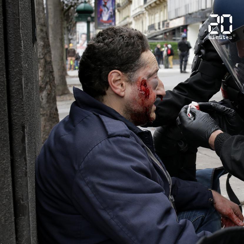 Violences policières contre des journalistes: Comment en est-on arrivé là ?