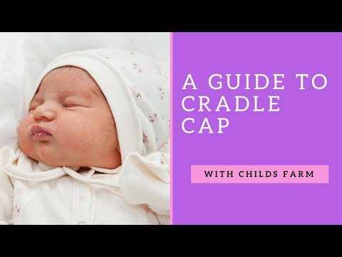 What is cradle cap and how do you treat it? With Dr Jennifer Crawley from Childs Farm! #ad