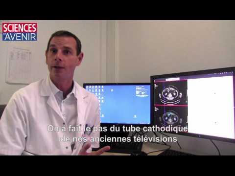 Première Mondiale au CHRU de Brest : un bond technologique rare