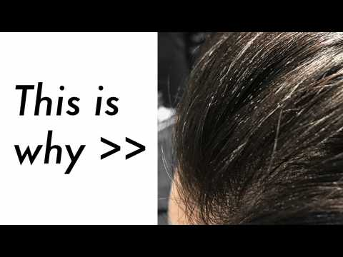 Why I Wash My Hair Everyday - Hair Wash Routine - Products Build-up & Damaged Hair  James Welsh