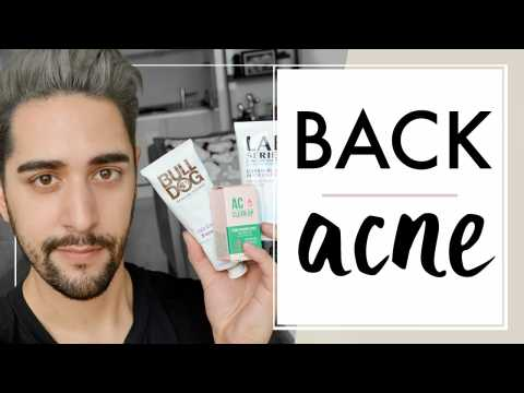 How To Treat Back, Shoulder & Chest Acne And Pimples - Grooming Tips & Products  James Welsh
