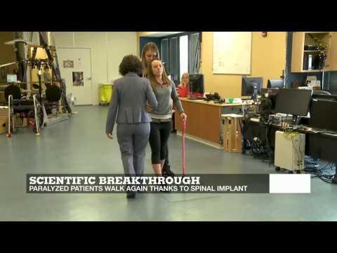 Breakthrough tech helps paraplegic patients walk again