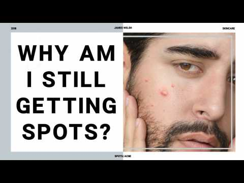 10 Reasons Your Still Getting Spots As An Adult?! Adult Acne - Causes Of Acne  James Welsh